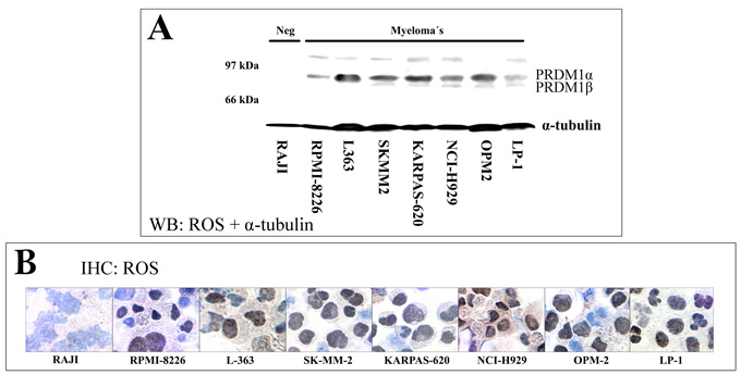 Validation of the monoclonal antibody ROS for the PRDM1 protein using a combination of Western blotting and IHC